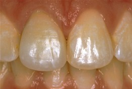 After-Before: Front (left) Central tooth has a poor restoration. Does not look natural and is not contoured properly to match the gumline of the rest of the teeth.  After: Replaced with an All Porcelain Crown (no metal). Tooth is now contoured to match the rest of the gumline. Restored tooth looks very natural and matches the shape and color of the patient's teeth.