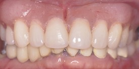 After-Before: Patient needs Upper and Lower Arch Rehabilitation.  After: Great smile, chewing function, and facial tissue support possible with an Upper Denture that is supported with Implants and Lower Implants and Crowns.