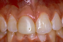 Before-Before: Front (left) Central tooth has a poor restoration. Does not look natural and is not contoured properly to match the gumline of the rest of the teeth.  After: Replaced with an All Porcelain Crown (no metal). Tooth is now contoured to match the rest of the gumline. Restored tooth looks very natural and matches the shape and color of the patient's teeth.