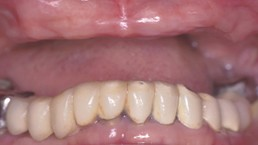 Before-Before: Patient needs Upper and Lower Arch Rehabilitation.  After: Great smile, chewing function, and facial tissue support possible with an Upper Denture that is supported with Implants and Lower Implants and Crowns.