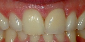 After-Before: Patient needs a Single Tooth Replacement of one Upper Central Incisor.  After: Smile and function restored with a Single Implant and an All Porcelain Crown (Cap) that fits securely over the implant.
